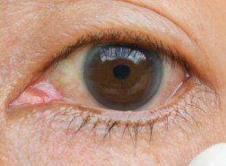 Alerta: médicos afirmam que conjuntivite pode ser um dos sintomas do coronavírus