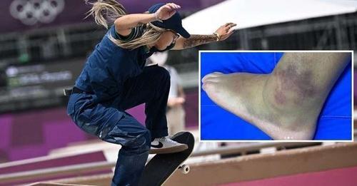 Pamela Rosa mostra tornozelo inchado após eliminação no skate